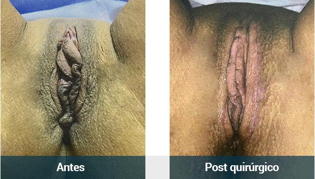 Vaginal_paciente6