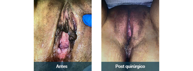 Vaginal_paciente4